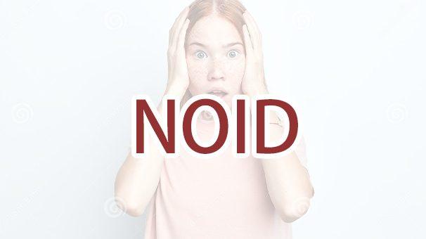 收到移民局发出的 NOID 该怎么办?